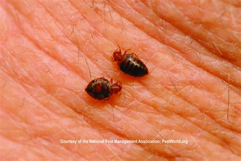 bed bugs or scabies bed bugs feeding on human skin courtesy of the national
