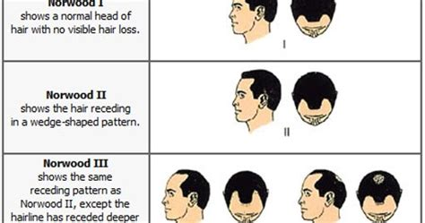 hamilton pattern hair loss cure against baldness norwood hamilton scale of male