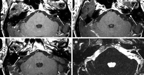 vestibular neuritis acute vestibular neuritis visualized by 3 t magnetic