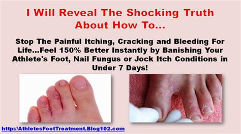 athletes foot home remedy best athletes foot treatment