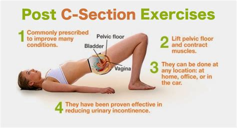 exercises post c section weight loss after pregnancy cesarean