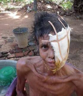 Pemutih Wajah Di Malang serius wanita malang muka di mamah kuman
