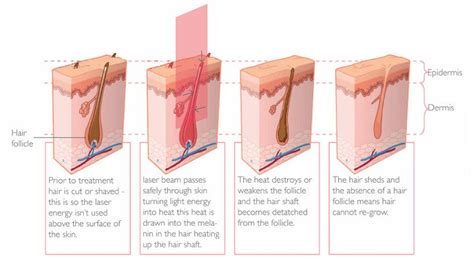 how does diode laser work for hair removal laser hair removal using dr moss meds