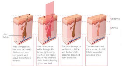 does lightsheer diode laser work does diode laser hair removal work 28 images 100 home use ipl hair removal laser hair