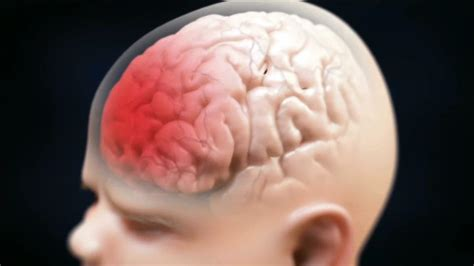 baby falling off bed brain damage baby falling off bed brain damage palmyralibrary org