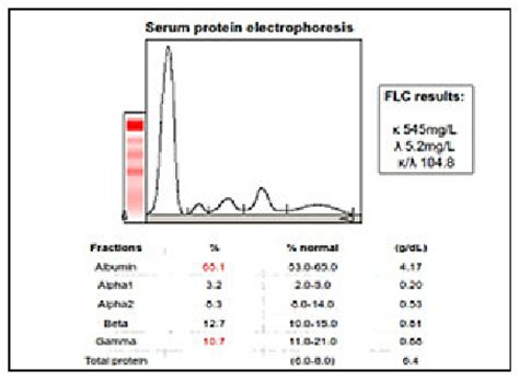 m protein spike spe of a patient with k lcmm showed suppressed gamma