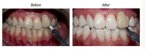 zoom teeth whitening whitening treatment smile lacom