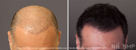 pics of scalp micropigmentation on people with long hair smp scalp micropigmentation and hair transplant with long