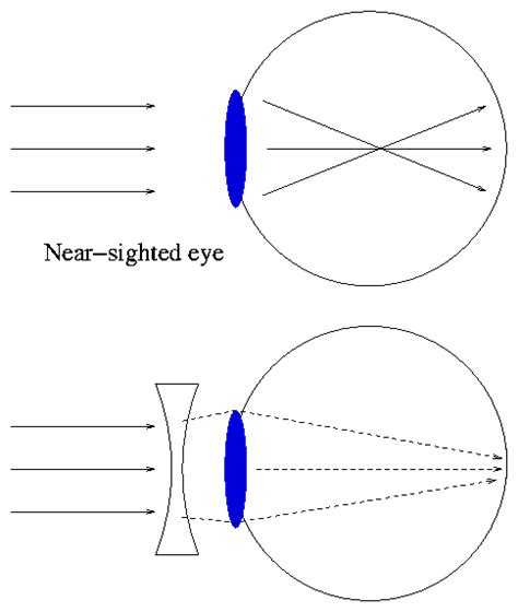 how does light pass through the eye re does different prescriptions of eye glasses affect