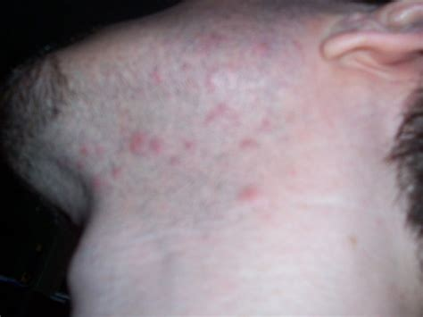 rash red bumps on back of neck itchy bumps on back pictures to pin on pinterest pinsdaddy