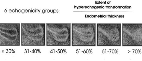 triple line pattern endometrium thin endometrial lining during fertility treatment