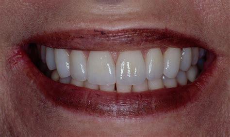 Katy TX Dentist   Smile Gallery