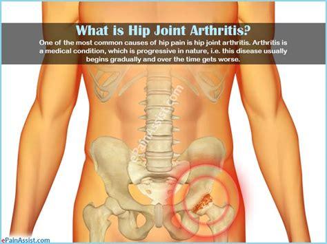 arthritis symptoms hip arthritis symptoms groin gallery