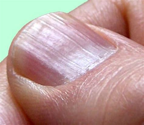 Finger Nail by Ridges In Fingernails Iytmed