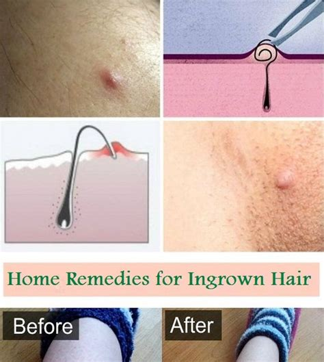 enhancers home remedies for ingrown hair