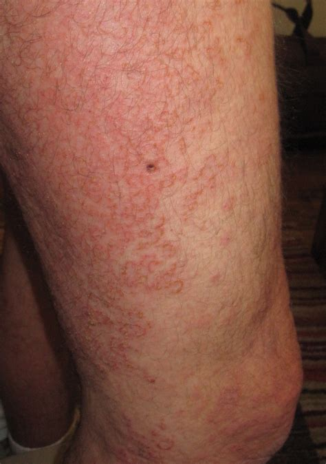 Itch After Shower by 12 Itching After Shower File Morbillivirus Measles