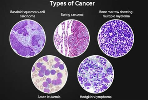 types of cancer pictures understanding cancer metastasis stages of cancer and more