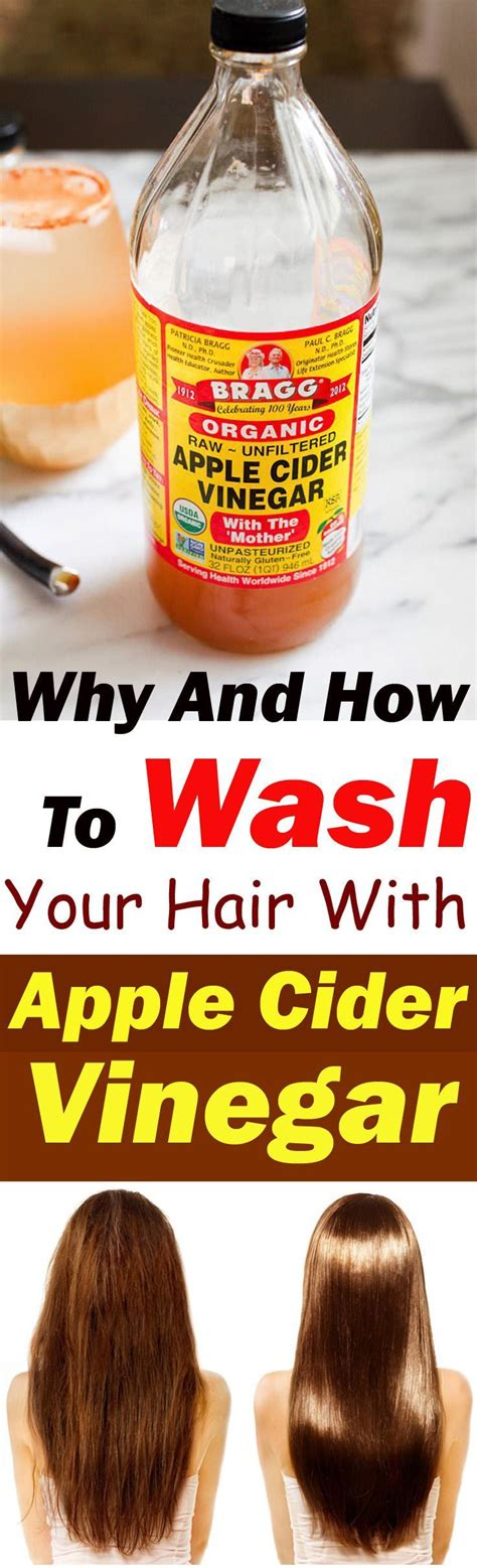 itching remedies apple cider vinegar 17 best ideas about home remedies for dandruff on dandruff remedy