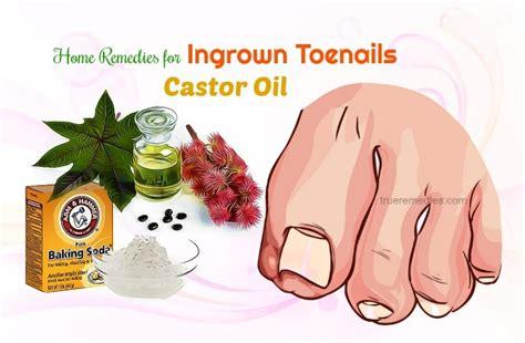 castor oil for removal of ingrown hairs 24 home remedies for ingrown toenails infection fungus