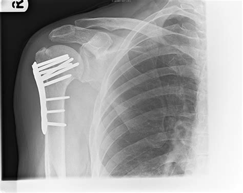 Proximal Humerus Fractures - Yorkshire Shoulder Clinic Humeral Fx