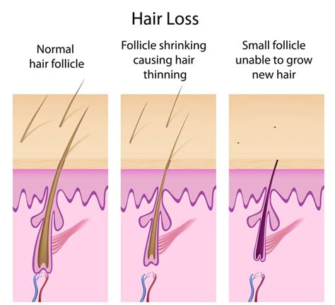 pictures of resonable amoount of hair thinning in bang area in 50s hair loss causes in women