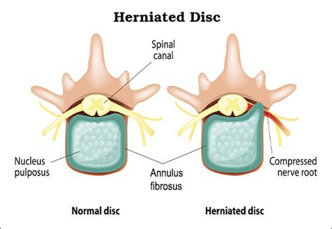 herniated disc diagram causes of neural foraminal stenosis