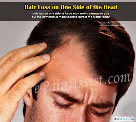thinning hair in women on top of head hair loss on one side of the head causes treatment diagnosis