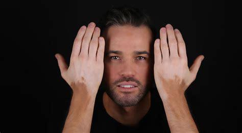 vitiligo images itv lorraine s chef dean edwards on living with vitiligo