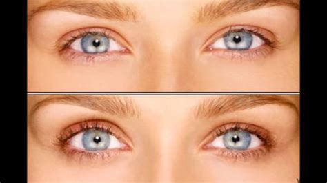 latisse change eye color will latisse make your change color realself