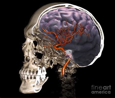 external scan external carotid artery 3d ct scan photograph by zephyr