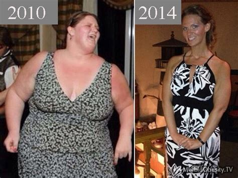 My Juice Now In 50 Milliliter Be Be Nic 3mg 47 best images about morbidly obese before and after on
