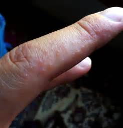 dh photo bank page 8 dermatitis herpetiformis celiac