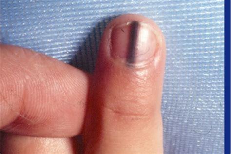 dark line on fingernail when darker isn t better health nails magazine
