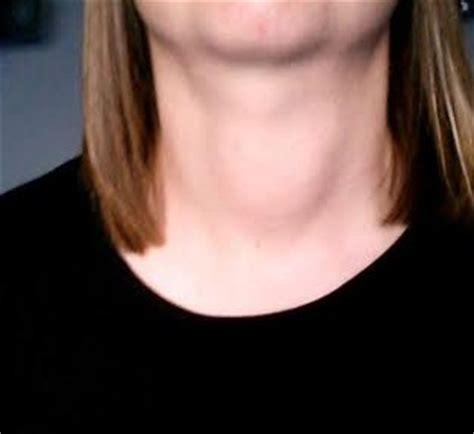 lump on s neck neck lump thyroid uk healthunlocked