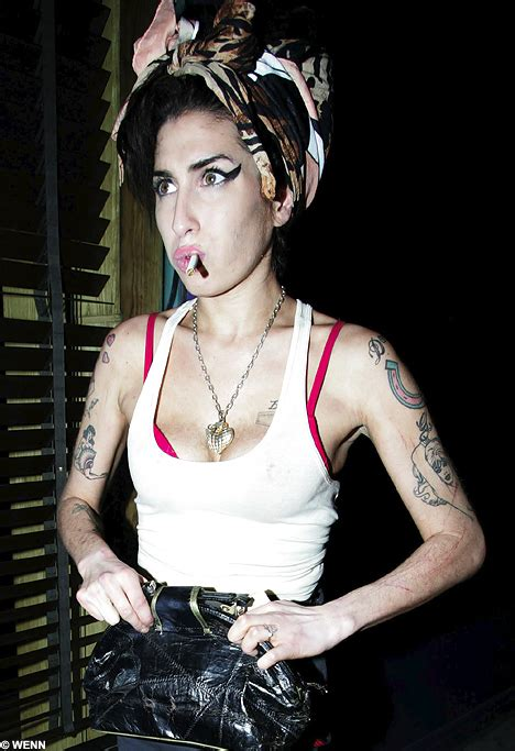 Scratches On Winehouses Arm Spark Fears The Singer Is Self Harming scratches on winehouse s arm spark fears the singer is