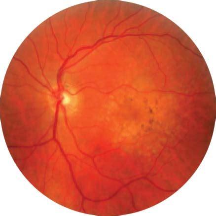 fundus u 2 complete eye examination cataract malaysia optimax eye