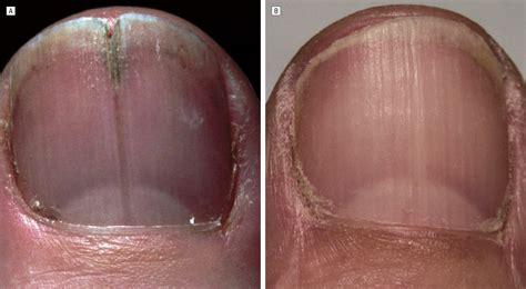 split nail bed localized longitudinal erythronychia diagnostic