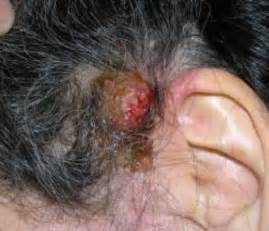 hair above ear scabs on scalp causes get rid treat small random itchy