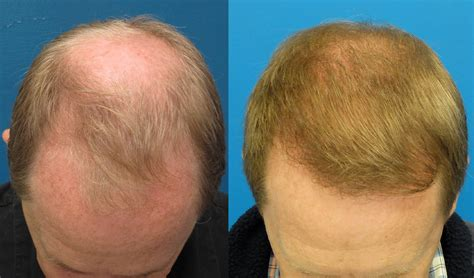 fut hong kong hair transplant dr wong 4597 grafts one year fut forum by and for hair