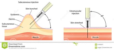 sedi iniezione intramuscolare tecniche dell iniezione sottocutanea ed intramuscolare