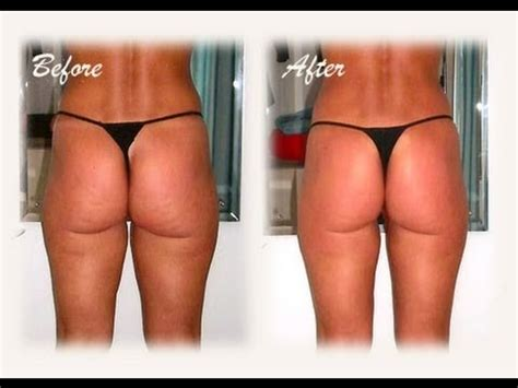 Do Detox Wraps Work For Cellulite by Wrapping Is A Therapeutic Treatment