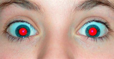ojos bizcos imagenes el por qu 233 de los ojos rojos en las fotos