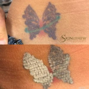 immediate tattoo removal before and after laser removal photos