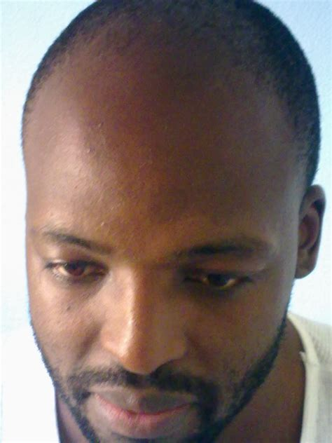receeding hairline afro how to fight a receding hairline