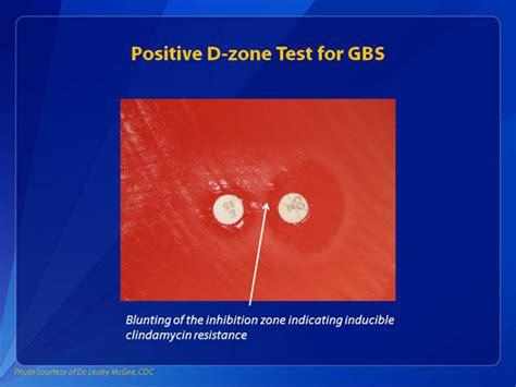 strep b positive c section gbs lab photo exles group b strep cdc