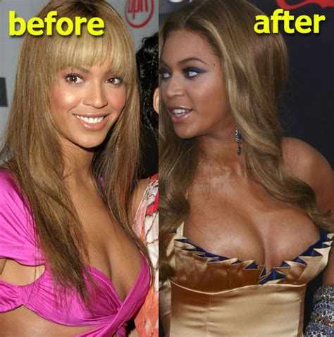 breast implants surgery all about celebrity breast beyonce plastic surgery before after nose job breast