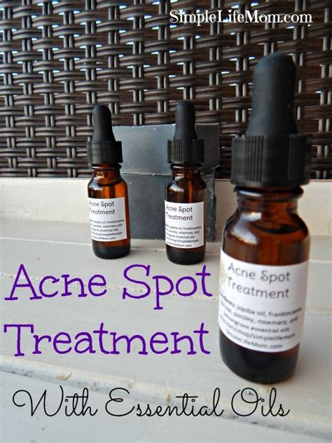 Treating Acne With Essential Oils by 39 Best Images About Acne On How To Remove