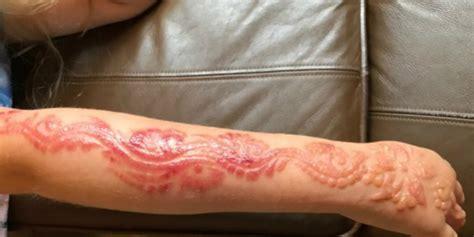 henna tato halal gadis kecil terancam cacat permanen setelah lukis tato