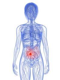 reuma test valori iperplasia linfoide dell intestino malattie geriatria
