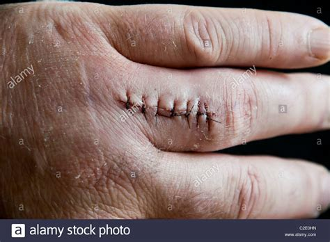 how long do dissolvable stitches last after c section image gallery dissolvable sutures